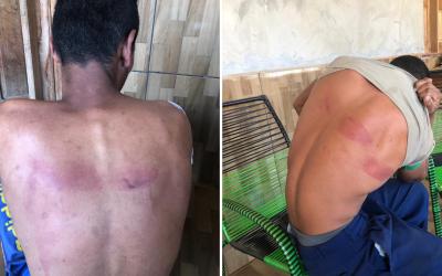 No Seringal São Bernardo (AC), policiais agridem e ameaçam jovens trabalhadores por horas