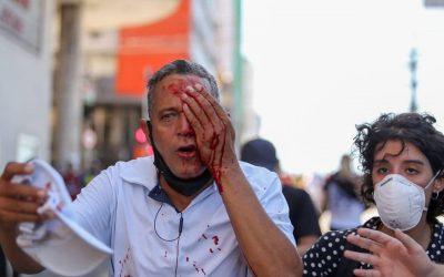 Homem atingido por bala de borracha da PM perde olho e não fazia parte da manifestação